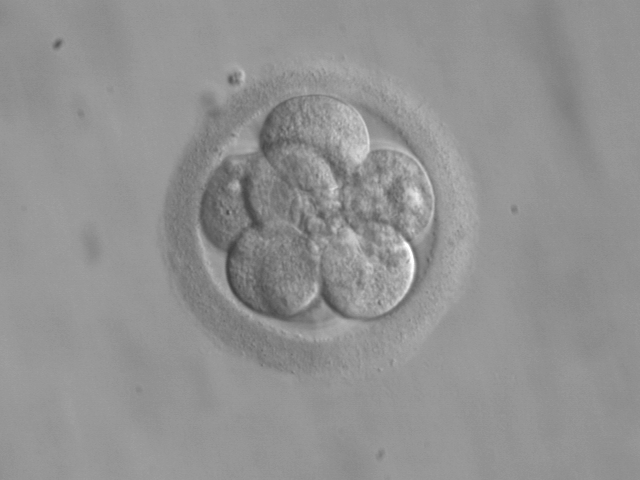 Research on human embryos – do we need to draw a new line in thesand?